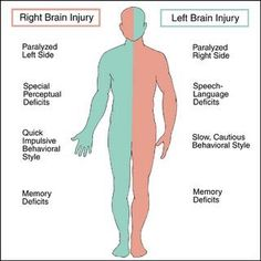 Left and Right Sided Brain Injury
