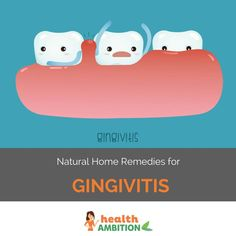 7 Home remedies for gingivitis