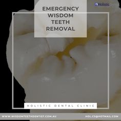 Best dental tips from our expert dentists in Melbourne who are experts in wisdom teeth removal surgery with Emergency Wisdom Teeth Removal from a dental clinic in Melbourne. Emergency Dental Care, Wisdom Teeth Removal, Dentist In, Surgery, Clinic, Melbourne, How To Remove, Tips, Counseling