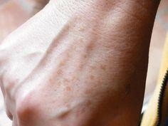 Les meilleurs remèdes naturels pour se débarrasser des points noirs, des verrues et des taches de vieillesse