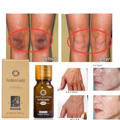 Dumbfounding Tips: Skin Care Routine Cetaphil anti aging devices tips.Skin Care Poster Tips anti aging skin care for men.Anti Aging Remedies Tips. Skin Care Regimen, Skin Care Tips, Pure Oils, Skin Serum, Makeup Moisturizer, Cool Ideas, Skin Brightening, Anti Aging Skin Care, Good Skin