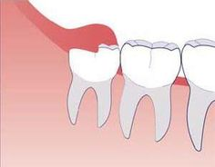 Wisdom teeth, also called third molars, typically erupt once all other teeth are in place and there is no more room in your mouth to accommodate four more back teeth. Wisdom Teeth Removal Procedure, A Piece Of Advice, Family Dentistry, Dental Surgery, Dental Care, Teeth Whitening, Helpful Hints, How To Remove, Teeth Quotes