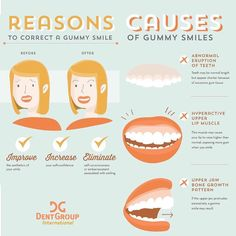Why do you have a gummy smile and reasons to correct it. #gummysmile #periodontology #dentist #dentists #DentGroup #cosmeticdentistry #digitaldentistry #dentistry #tipoftheday by dentgroupinternational Our Cosmetic Dentistry Page: http://www.myimagedental.com/services/cosmetic-dentistry/ Google My Business: https://plus.google.com/ImageDentalStockton/about Our Yelp Page: http://www.yelp.com/biz/image-dental-stockton-3 Our Facebook Page: https://www.facebook.com/MyImageDental Image Dental…