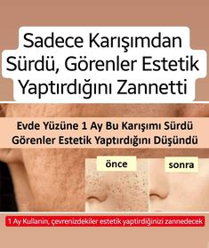 Sadece Karışımdan Sürdü, Görenler Estetik Yaptırdığını Zannetti - He drove only from the mixture, those who saw it thought he had an aesthetic - Quoted # # Mixture Drove # und Schönheit Beauty Care, Beauty Skin, Beauty Hacks, Beauty Makeup, Album Design, Skin Tag Removal, Get Rid Of Blackheads, Beauty Tips For Face, Face Tips