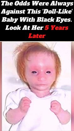 """""""We've been told she looks like a porcelain doll, a baby in a pram and people still call her baby Charlotte, which riles me something chronic, because she's not a baby, she's 5-years-old,"""" Emma Garside told Barcroft TV in 2013. Summer Gel Nails, Sunset Wallpaper, Porcelain Doll, Girls World, 5 Years, Baby Animals, Fun Facts, Eye Makeup, Tuf 20"""