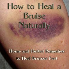 How to Heal a Bruise Naturally.  Home remedies and herbal remedies to prevent and heal bruises quickly.