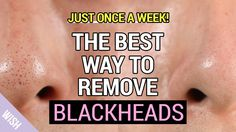 Ultimate Blackhead Removal & Preventing Tips   How to Remove Blackheads ...