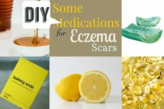 Some DIY Medications for Eczema Scars