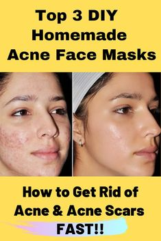 Daily Skin Care Easy face care examples to have a realy smooth skin. These smooth ideas put together on 20191121 , Skin Care Idea 9183409427 Beauty Tips For Skin, Skin Tips, Beauty Skin, Natural Beauty, Beauty Hacks, Best Face Products, Makeup Products, Makeup Tips, Skin Serum