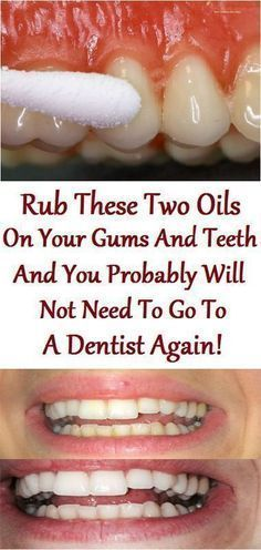 2 drops each of tea tree oil and clove oil mixed with coconut oil, and rub on teeth and gums twice a day.