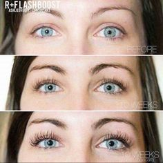 •LASHBOOST FACTS• ✔️ Strengthens and nourishes your lashes with peptides + biotin + keratin ✔️Just one swipe on your top lash line before bed every night ✔️Can be used on brows ✔️Clinically tested for 5 years ✔️Safe for contact lenses ✔️60 day money back guarantee This before and after though! What a difference in not just her lashes but also her brows! #lashboost #rodanandfields dailynnbaker.myrandf.com