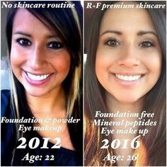 """Check out what Ashley has to say about her results!!! """"People have said to me before that """"Oh you already had great skin before RF"""" thinking that there must not have been a big change when using the products.  But to be honest I did have acne in high school and had to take birth control to tame it and used oil free face wash with a moisturizer because my dermatologist recommended it. I wasn't really consistent with washing my face every day though. It helped in controlling it but I still had…"""