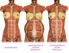 Los dolores que ciñen en la zona subcostal derecha y la espalda