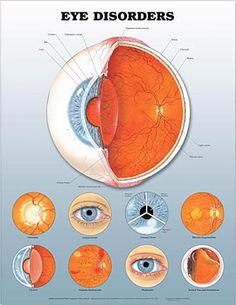 20/20 LOVE on Pinterest | Disorders, Eyes and Eye Anatomy