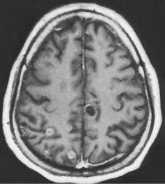 Neurocisticercose (Cisticercose do sistema nervoso central).