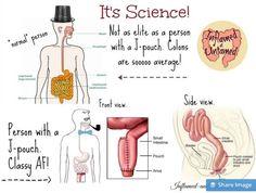 Photo: J-Pouch Science! #FAPvoice