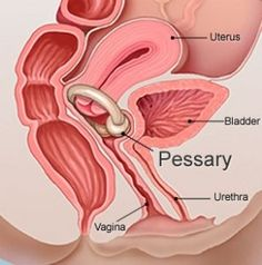 Sometimes a pessary ring can be used as a conservative means of reducing POP. Research shows that this can also assist with pelvic floor strengthening once the prolpase has been lifted above the muscles.