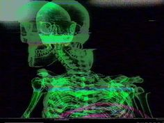 aesthetic photography neon green and black skeleton horror x ray edit Verde Neon, Nagisa Shiota, Retro Aesthetic, Japanese Aesthetic, Aesthetic Grunge, Cybergoth, Vaporwave, Aesthetic Pictures, Wall Collage