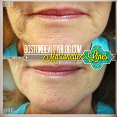 Turn the lines Marionette Lines, Remedies, Smile, Age, Fitness, Home Remedies, Laughing