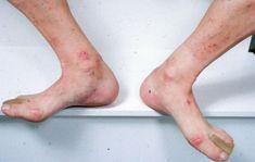 dermatitis 7 hónap fáj a papilloma alatt
