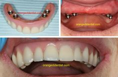 Implant Supported Complete Upper Denture. This was a life changing event for the patient. This was completed in our office in Orange, CT Dental Photos, Dental Services, Dental Implants, Dentistry, Teeth, Life Changing, Orange Office, Smile, Foods