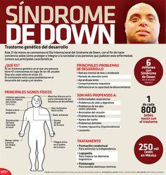 Síndrome de Down | Alto Nivel