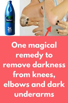 One magical remedy to remove d treatment you will need Toothpaste , make sure it is not gel based, use plain white toothpaste Coconut oil Lemon Salt What to do: In a clean bowl take 1 tea spoon of toothpaste Add … Coconut Oil For Acne, Organic Coconut Oil, Coconut Oil Lotion, Dark Elbows, Skin Care Remedies, Oils For Skin, Lemon Salt, Skin Treatments, Face Treatment