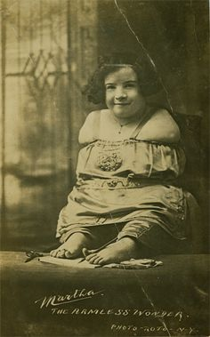 Martha Morris   Armless Wonder  Born in the early 1900's Morris was born without arms. She also had a leg deformity that prevented her from walking. She was able to write as well as type with her feet. She appeared in Tod Browning's Freaks   (Picture Postcard)