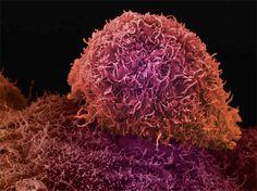 Imunoterapia no cancro eleita pela Science como avanço mais importante de 2013 #saude