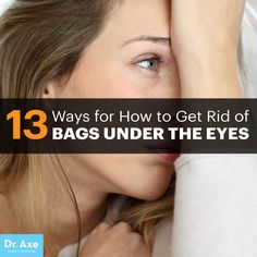 How to get rid of bags under eyes - Dr. Axe http://www.draxe.com #health #holistic #natural