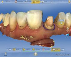 CEREC Omnicam is the best way to restore an anterior tooth.  Easier polychromatic crown design!