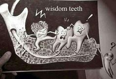 Lol look at the wisdom tooth