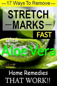Aloe Vera for Stretch Marks Removal, 17 Fast Working Home Remedies to Use Aloe Vera to Get Rid of Stretch Marks, Aloe Vera is one of those natural ingredients that help well in reducing the stretch marks. It has been estimated that over 90% of pregnant wo