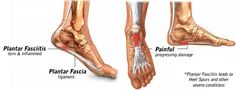 Do you suffer from plantar fasciitis? Read my blog post about it.