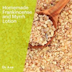 Homemade Frankincense and Myrrh Lotion - Dr.Axe