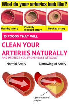 10 FOODS THAT WILL CLEAN YOUR ARTERIES NATURALLY AND PROTECT YOU FROM HEART ATTACKS