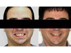 http://www.neoclinique.ro/ro/caz/119/aparat-dentar-cu-bracketi-metalici/