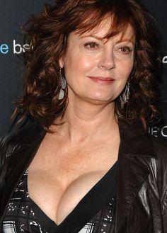 Susan Sarandon plastic surgery