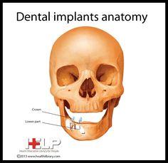 Dental Implants Anatomy