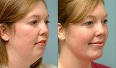 A work-out to get rid of your double chin...and it works