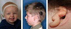 Treatment Options for Atresia and Microtia