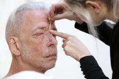 Helene Gugenheim uses Kintsugi on scars to tell a beautiful story   Metro News