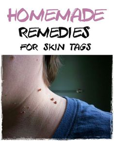 Home Remedies for Skin Tag Removal - My Favorite Things