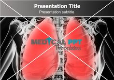 #Pneumonia #PowerPoint #Template.  Greate template for presentation on pneumonia, pulmonary, radiography, radiology, receipt, recommendation, Bacteria ppt templates. Free #bacteria powerpoint templates.  More Details: http://www.medicalppttemplates.com/medical-ppt-templates.aspx/Pneumonia-477