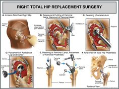 Images about total hip replacement on pinterest hip replacement