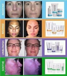 I have been using this Rodan  Fields product that helps reverse sun damage and aging and loving it!