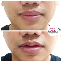 38 Best Lip surgery images in 2018 | Lip surgery, Surgery