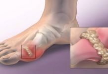 Gout is a type of arthritis, which occurs as a result of the accumulation of uric acid, which forms crystals in the joints, and leads to inflammation and intense joint pain. In most cases, gout is Home Remedies For Gout, Gout Remedies, Natural Home Remedies, Herbal Remedies, Types Of Arthritis, Arthritis Symptoms, Uric Acid Gout, How To Cure Gout, Women Health