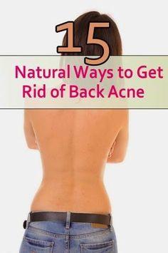 15 Natural Ways to Get Rid of Back Acne | Medi Villas