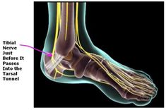 Source by daynapr Tarsal Tunnel Syndrome, Cauda Equina, Cervical Disc, Rare Disease, Carpal Tunnel, Sports Medicine, Foot Pain, Plantar Fasciitis, Sciatica
